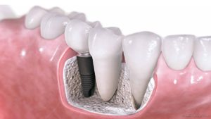 dental-implants-example