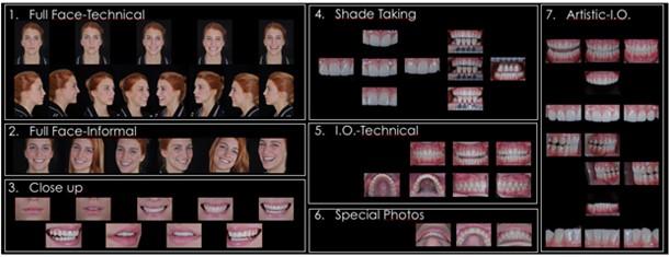 Smile Design Chart