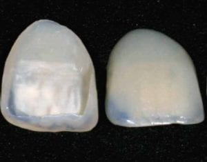 natural dental veneers 2