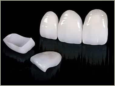 natural dental veneers