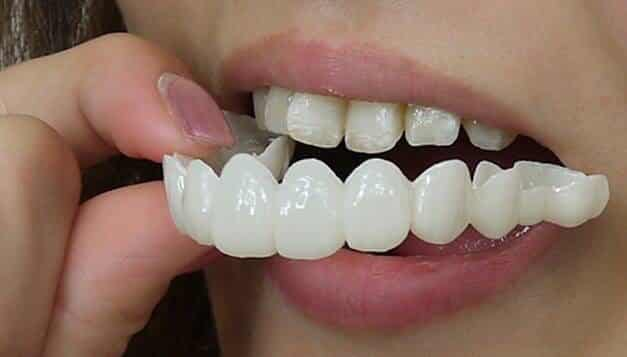 removal dental veneers