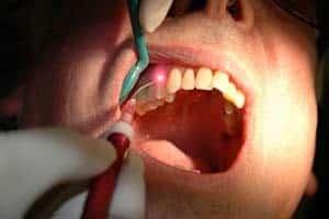 doctor's tools examining patient's teeth