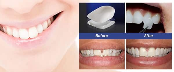 Restore Your Smile With Natural Veneers | Smiles By Hanna