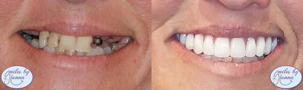 all-on-4 dental implant patient's before and after image