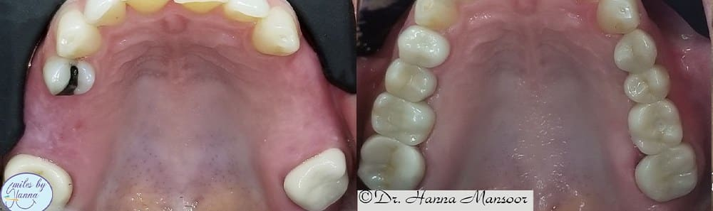 Patient 25 Dental Implants Before and After