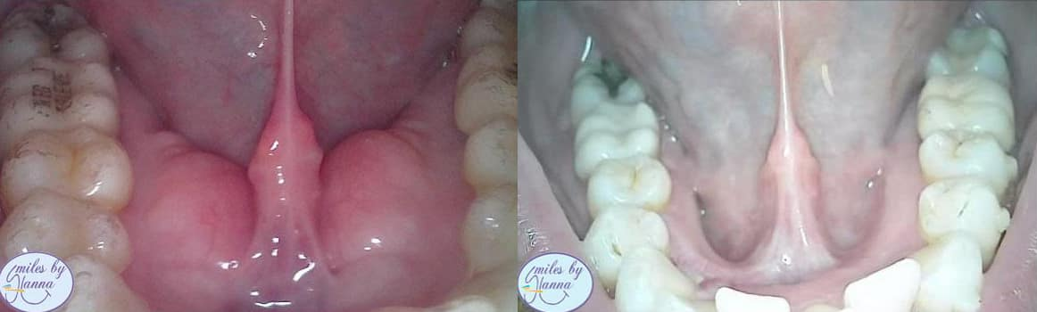 Patient 18 Tori Removal Before and After