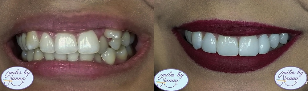 Patient 28 Veneers Before and After Copy