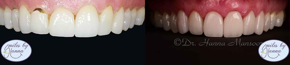 Patient 27 Veneers Before and After