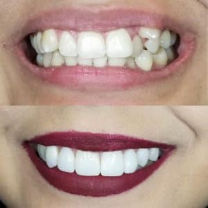 veneers patient 1 before and after results