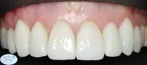 veneers patient 5 after results