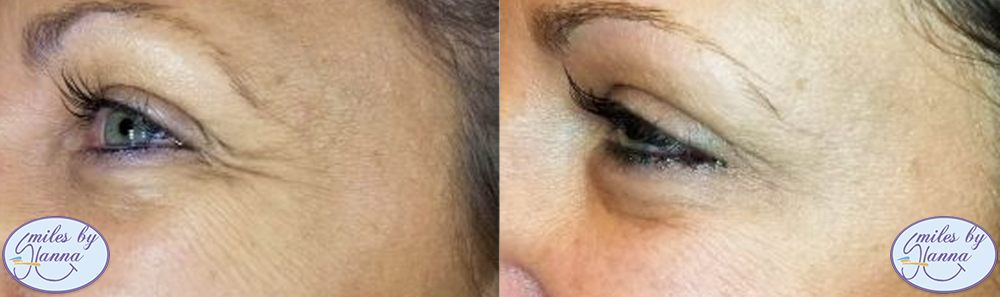 Botox Before and After Image 1