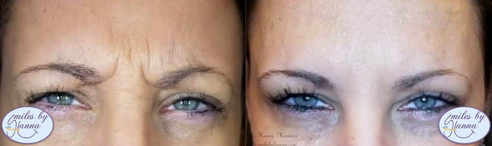 Botox Before and After Image 2