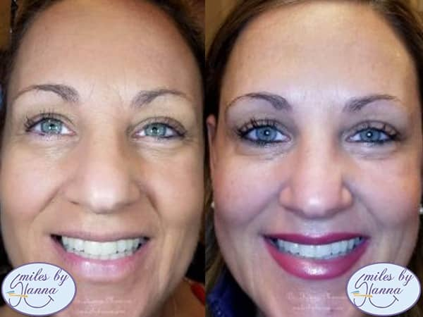 Botox Before and After Image 4