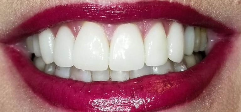 veneers patient 3 results