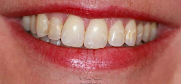 veneers patient 3 before