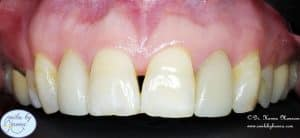 veneers patient 4 before