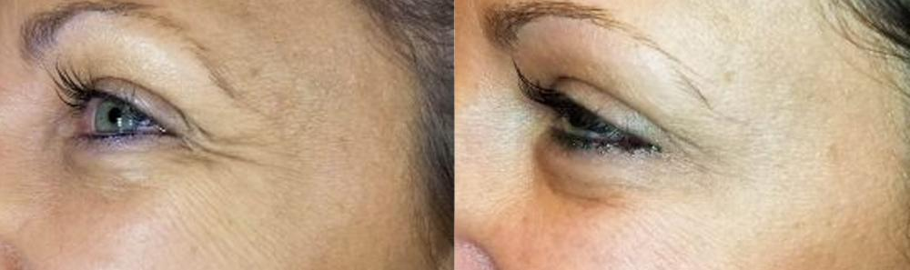 botox patient before and after image