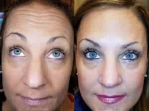 Botox Before and After Image 3 Copy