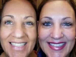 Botox Before and After Image 4 Copy