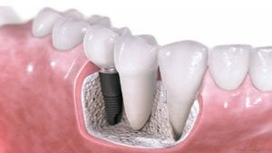 dental implant interior diagram
