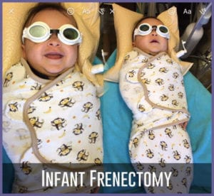 infant frenectomy-patient