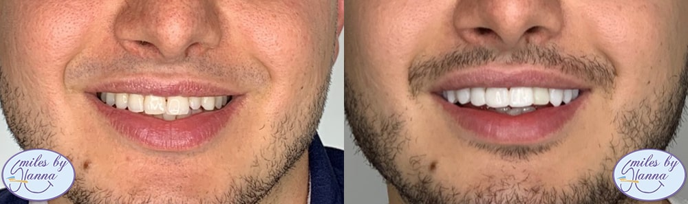 Patient 1 Digital Smile Design Before and After