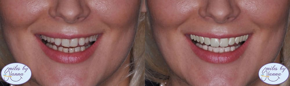 Patient 10 Digital Smile Design Before and After
