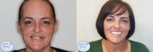 all-on-4 dental implant patient's before and after2