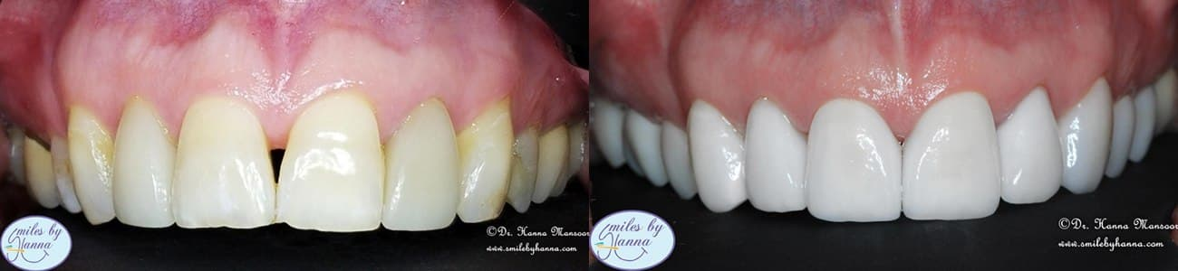 Patient 1 Veneers Before and After