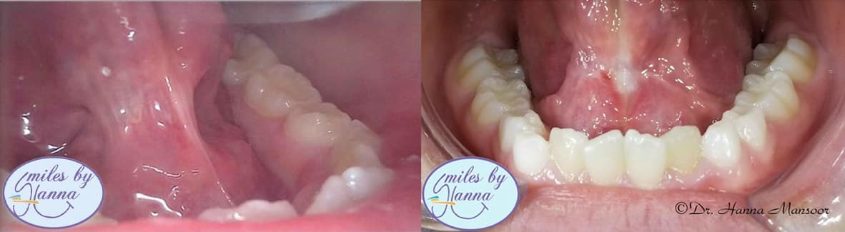 patient's story of frenectomy before and after image1