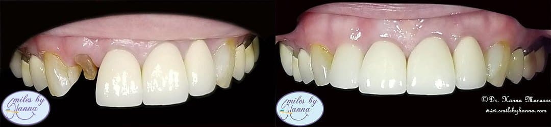 Dental Implants Patient 11 Before and After