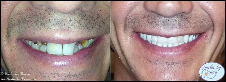 all-on-4 dental implant patient's before and after 7