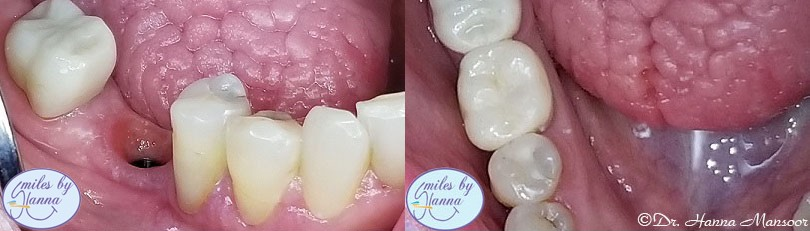 all-on-4 dental implant patient's before and after 9