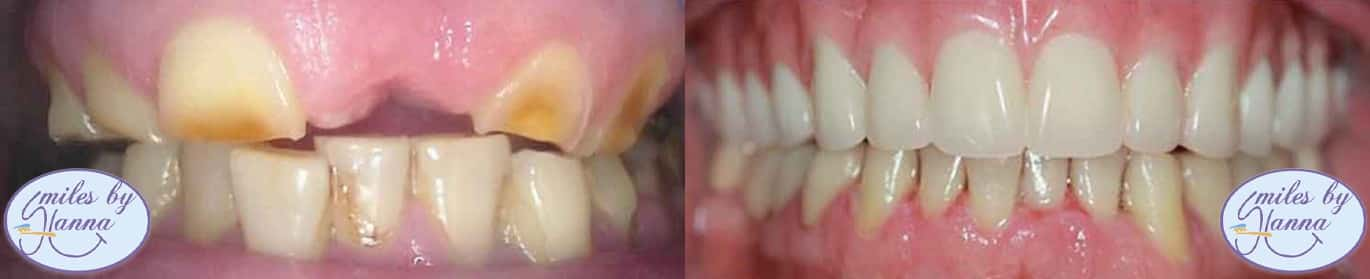 Dental Implants Patient 12 Before and After