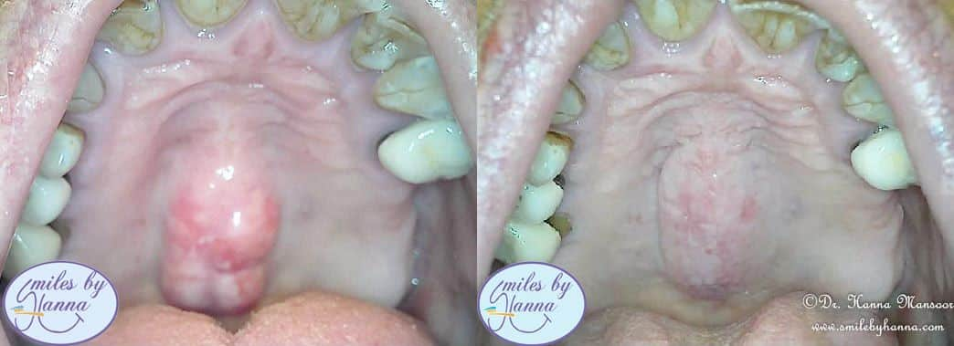 Patient 20 Tori Removal Before and After