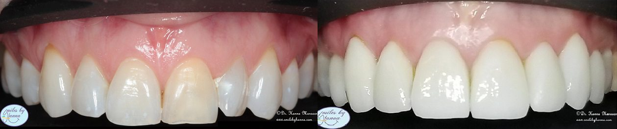 Veneers Patient 3 Before and After
