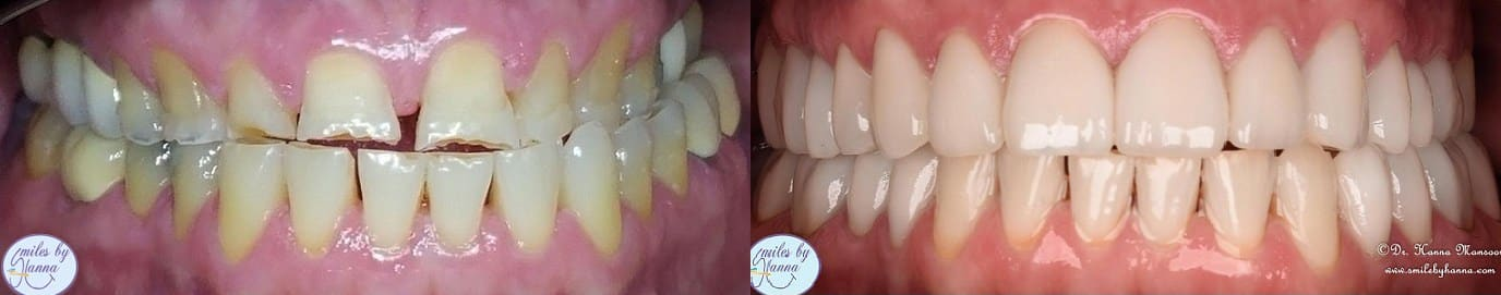 Veneers Patient 6 Before and After