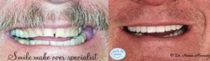 Patient 4 Veneers Before and After