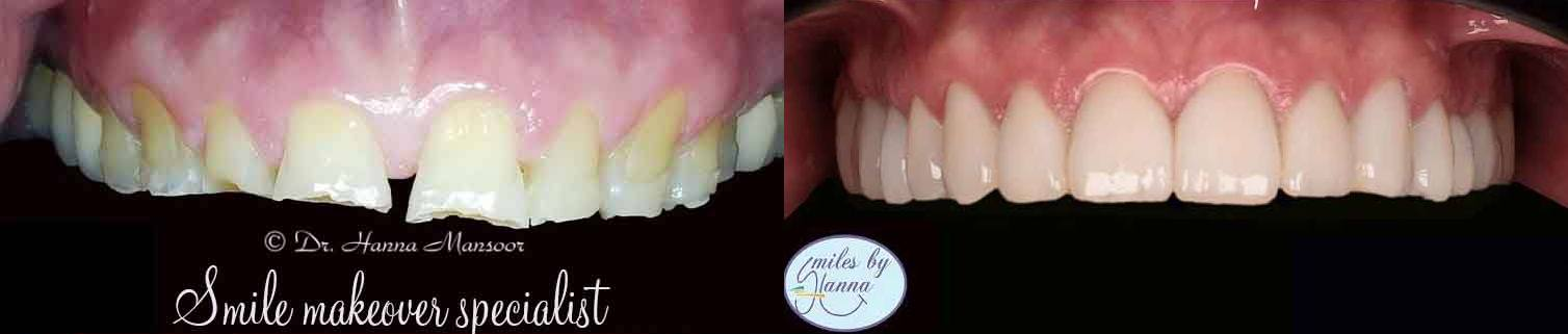 Veneers Patient 6 Before and After Upper Jaw
