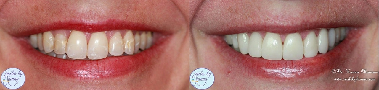 Veneers Patient 7 Before and After