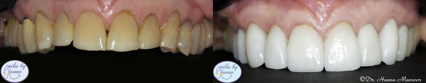 Veneers Patient 8 Before and After