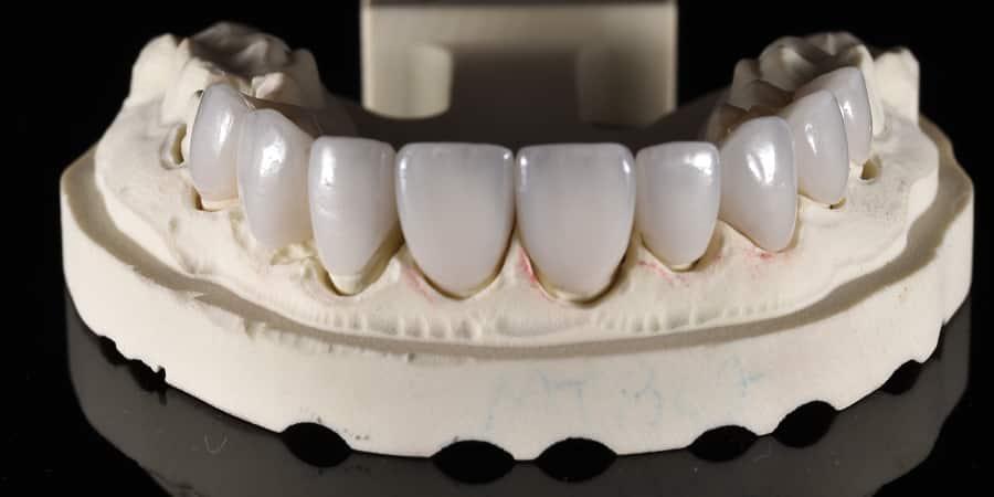 all-on-4-prosthesis-slide_4