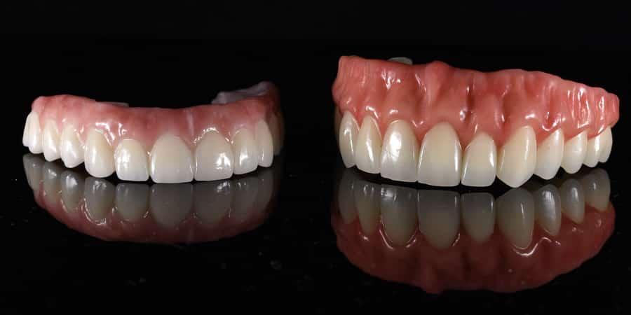 all-on-4-prosthesis-slide_5