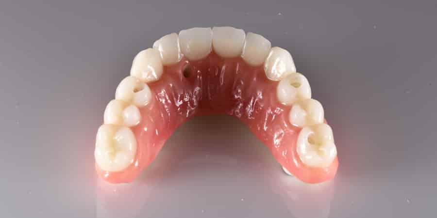 all-on-4-prosthesis-slide_6