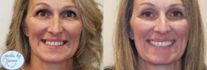 Dental Implants Patient Before & After Front View