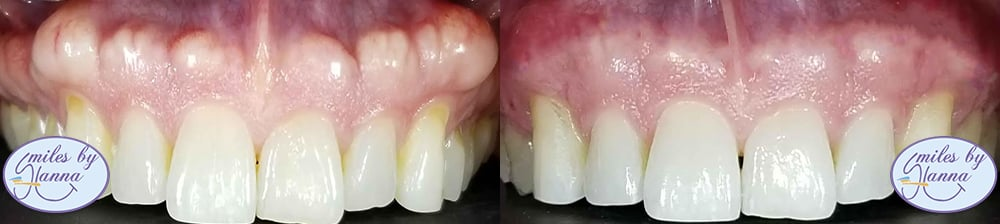 Patient 10 Before and After Tori Removal