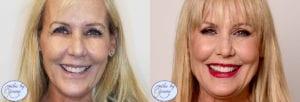 Veneers Patient Before & After Front View