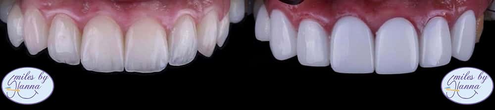 Patient 11 Before and After Veneers