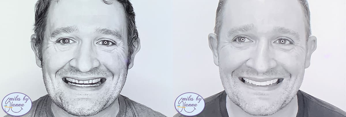 Patient 12 Before and After Veneers