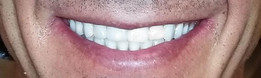 After Implants Widget